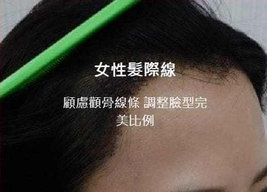 woman-hair-transplant